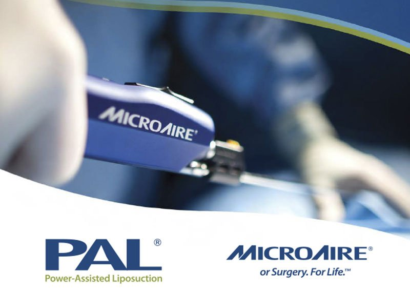 El Sistema PAL® de MicroAire® Aesthetics ya está en nuestro consultorio